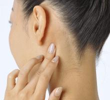 片頭痛(偏頭痛)と鍼灸